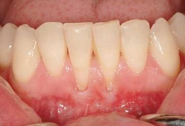 Elektrische Zahnbürste: Zahnfleisch geht zurück - Was tun?